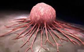 پاورپوینت سرطان انواع آن و راههای پیشگیری از آن